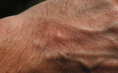 How do i stop mosquito bites from itching?